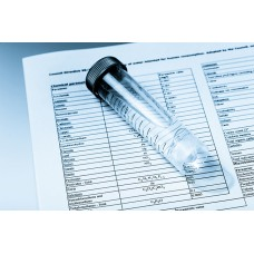 İçme Suyu Kimyasal Analizi (Proses)