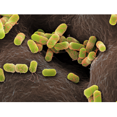 Bakteri İzolasyon ve İdentifikasyonu