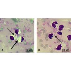 Canine Anaplasmosis, IgM (Anaplasma phagocytophilu