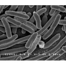 Escherichia coli 0157 Analizi